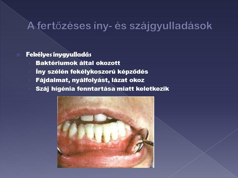  A szájpenész kiváltó okai › A fertőzést sarjadzó gombafajta okozza, amely Candidának hívnak.