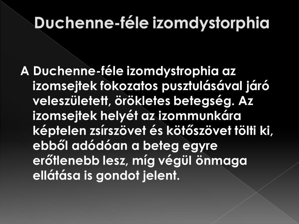 A Duchenne-féle izomdystrophia az izomsejtek fokozatos pusztulásával járó veleszületett, örökletes betegség. Az izomsejtek helyét az izommunkára képte