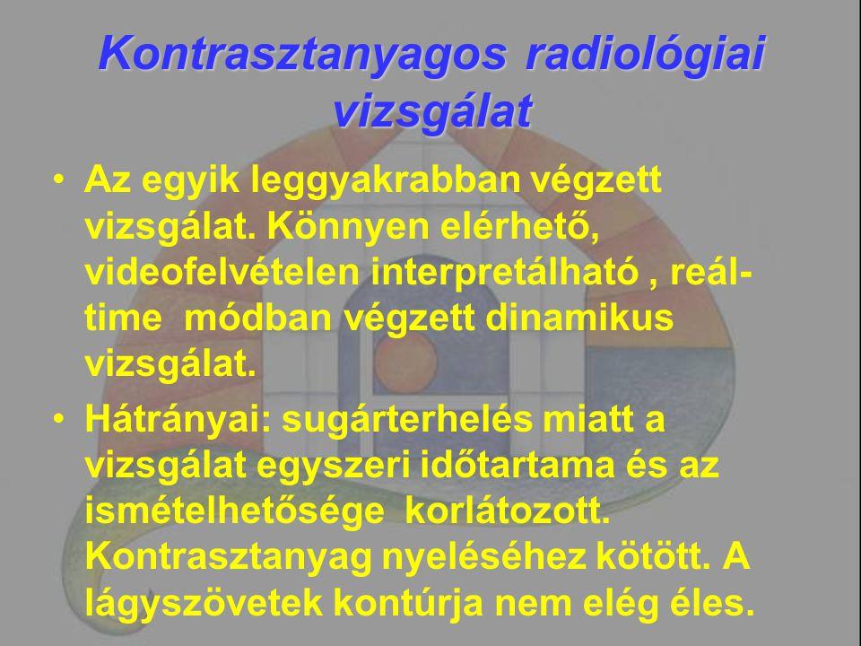 Kontrasztanyagos radiológiai vizsgálat Az egyik leggyakrabban végzett vizsgálat. Könnyen elérhető, videofelvételen interpretálható, reál- time módban