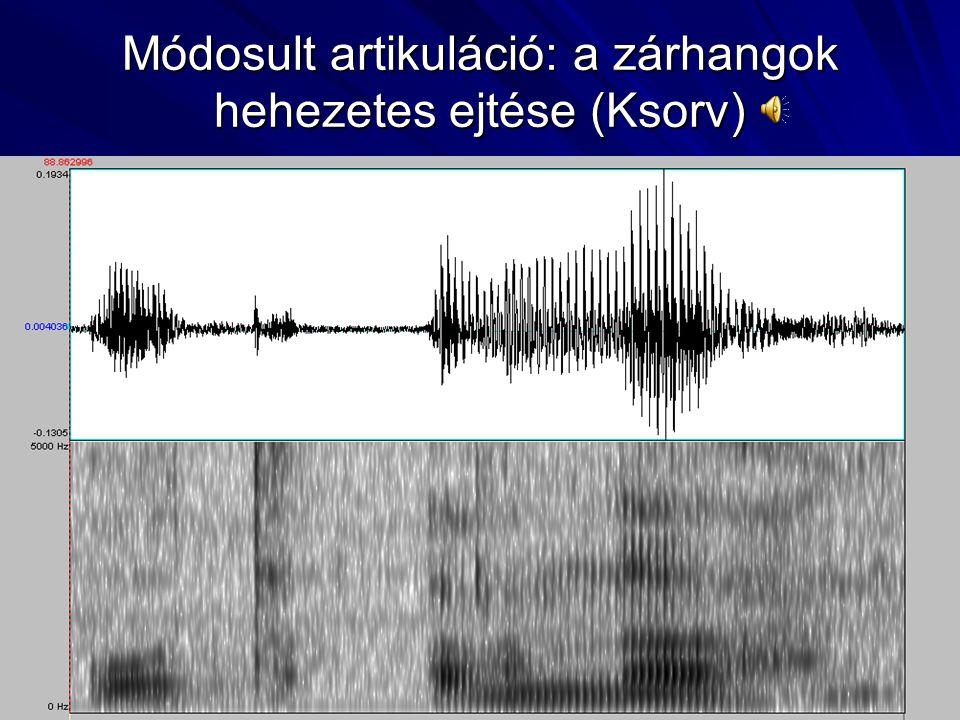 Módosult artikuláció (Ksorv)  Hangkezdési nehézségek Az alveoláris és veláris zárhangokat, a nazálisokat és a labiodentális, alveoláris és posztalveo