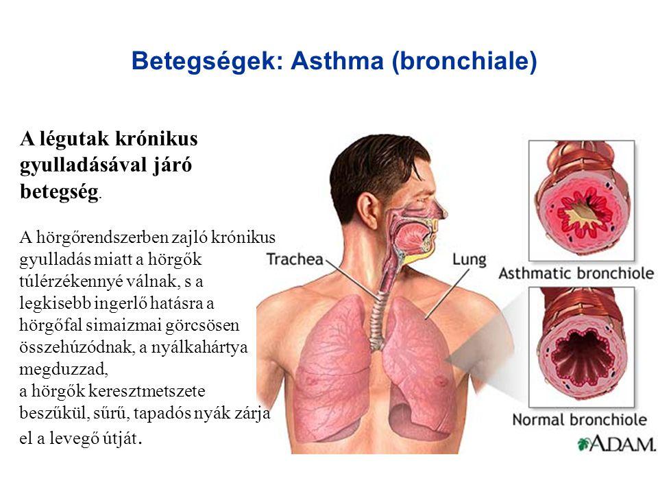 Betegségek: Asthma (bronchiale) A légutak krónikus gyulladásával járó betegség. A hörgőrendszerben zajló krónikus gyulladás miatt a hörgők túlérzékenn