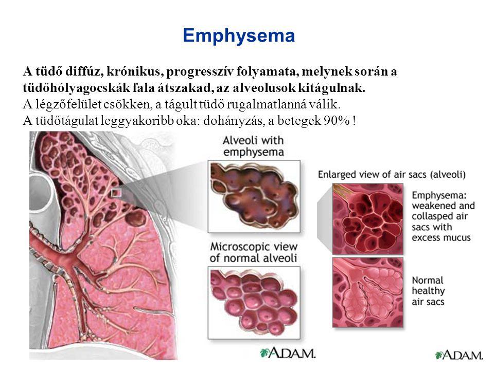 Emphysema A tüdő diffúz, krónikus, progresszív folyamata, melynek során a tüdőhólyagocskák fala átszakad, az alveolusok kitágulnak. A légzőfelület csö
