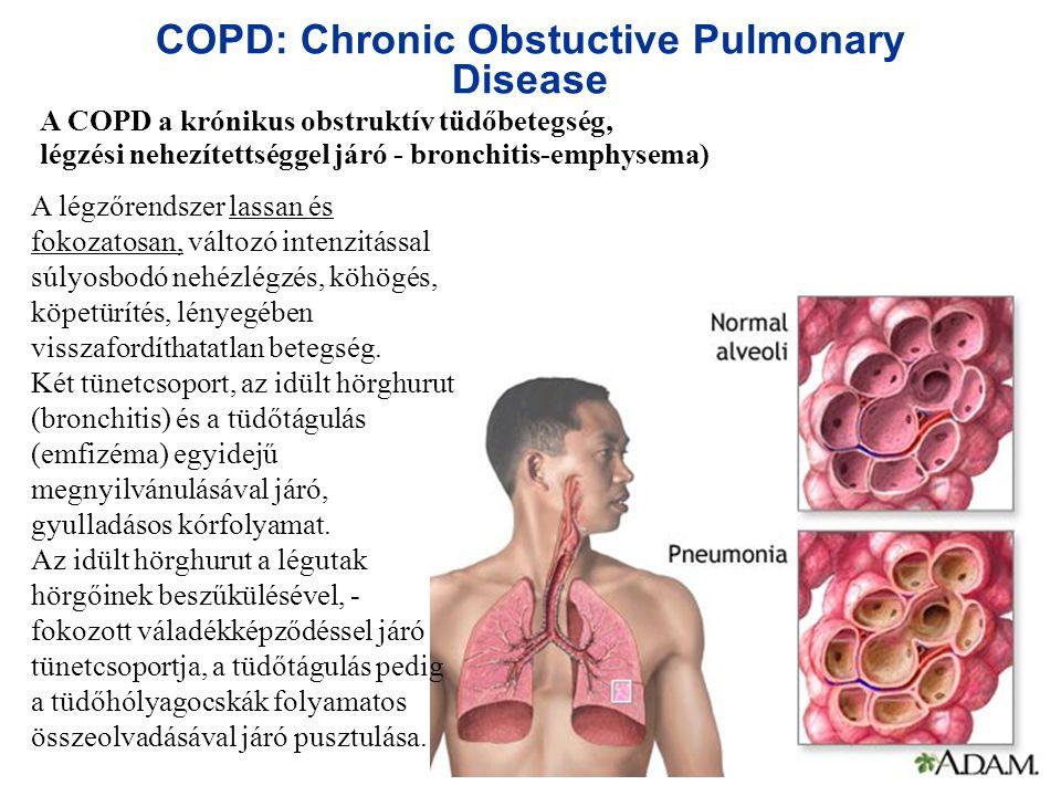 COPD: Chronic Obstuctive Pulmonary Disease A COPD a krónikus obstruktív tüdőbetegség, légzési nehezítettséggel járó - bronchitis-emphysema) A légzőren