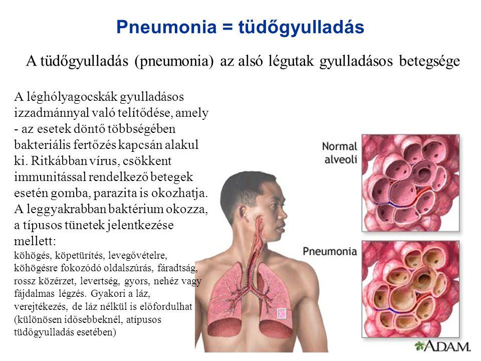 Pneumonia = tüdőgyulladás A tüdőgyulladás (pneumonia) az alsó légutak gyulladásos betegsége A léghólyagocskák gyulladásos izzadmánnyal való telítődése