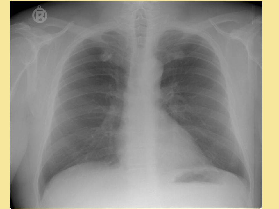 A szív röntgen kontúrjai (baloldali nézet - a balpitvar vizsgálata) - de - 3D CT, NMR és SPECT