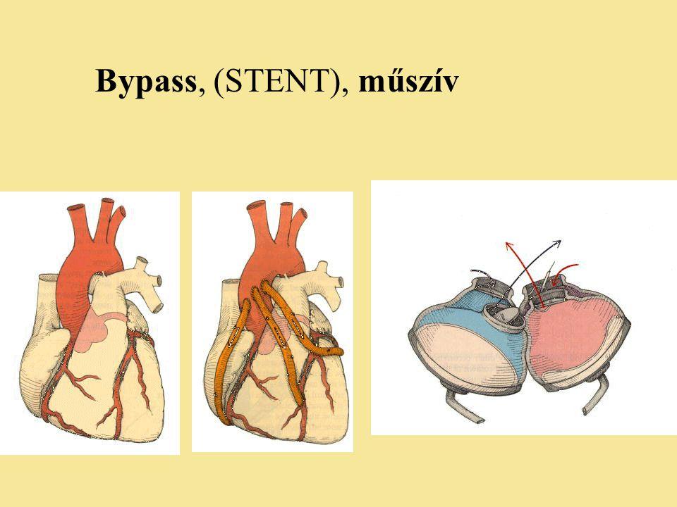 Bypass, (STENT), műszív