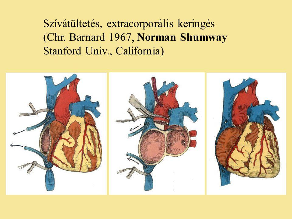 Szívátültetés, extracorporális keringés (Chr. Barnard 1967, Norman Shumway Stanford Univ., California)