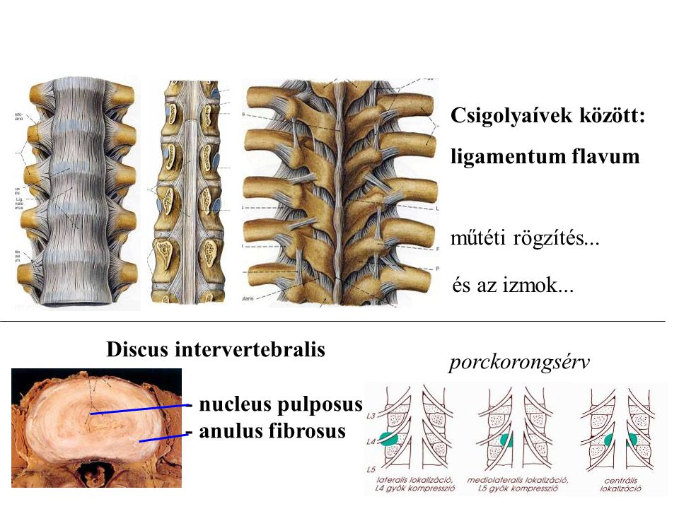 Discus intervertebralis - nucleus pulposus - anulus fibrosus porckorongsérv és az izmok... Csigolyaívek között: ligamentum flavum műtéti rögzítés...