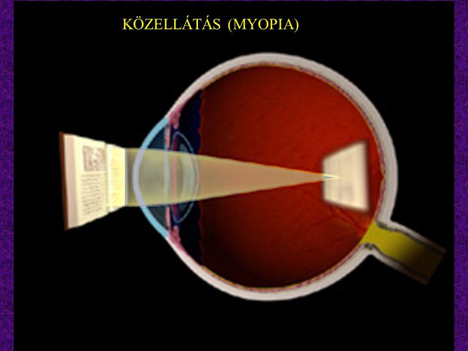 KÖZELLÁTÁS (MYOPIA)
