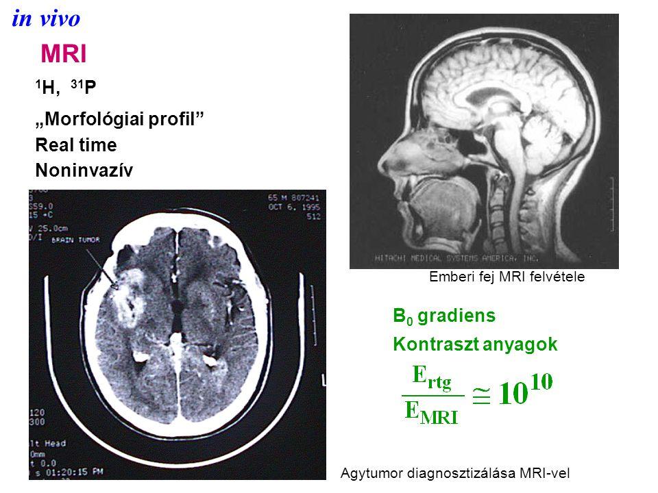 """MRI 1 H, 31 P """"Morfológiai profil Real time Noninvazív B 0 gradiens Kontraszt anyagok Emberi fej MRI felvétele Agytumor diagnosztizálása MRI-vel"""