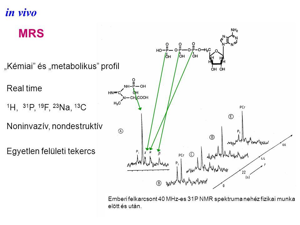 """in vivo MRS """"Kémiai és """"metabolikus profil Real time 1 H, 31 P, 19 F, 23 Na, 13 C Noninvazív, nondestruktív Egyetlen felületi tekercs Emberi felkarcsont 40 MHz-es 31P NMR spektruma nehéz fizikai munka elött és után."""