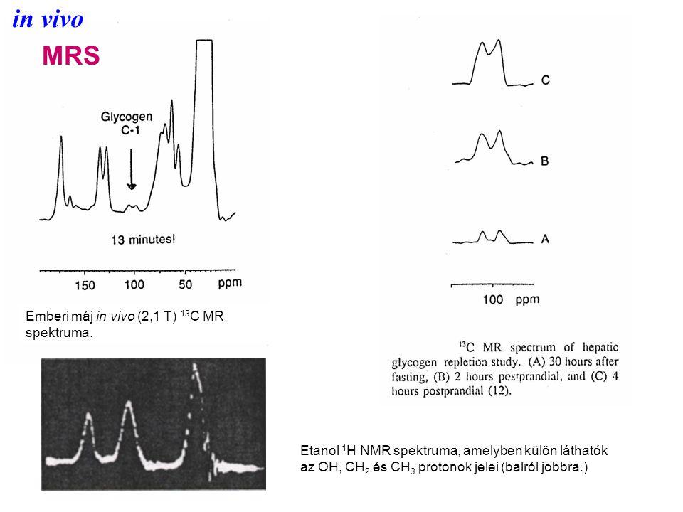 in vivo MRS Etanol 1 H NMR spektruma, amelyben külön láthatók az OH, CH 2 és CH 3 protonok jelei (balról jobbra.) Emberi máj in vivo (2,1 T) 13 C MR spektruma.