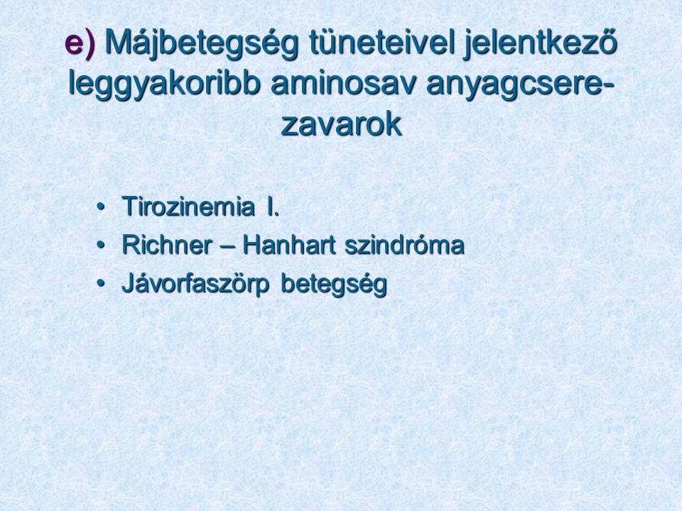 e) Májbetegség tüneteivel jelentkező leggyakoribb aminosav anyagcsere- zavarok Tirozinemia I.Tirozinemia I. Richner – Hanhart szindrómaRichner – Hanha