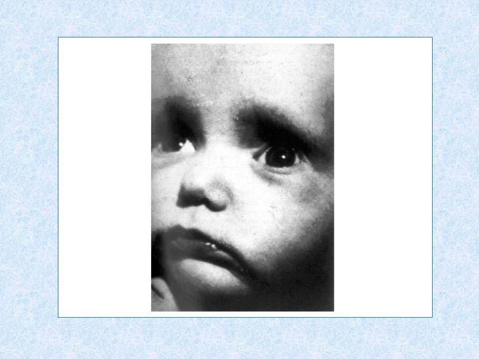 f) Extrahepatikus epeútbetegség Csecsemőkor: extrahepatikus (biliáris) atresia (EHBA)Csecsemőkor: extrahepatikus (biliáris) atresia (EHBA) Sedülő-felnőttkor: vanishing bile szindrómaSedülő-felnőttkor: vanishing bile szindróma