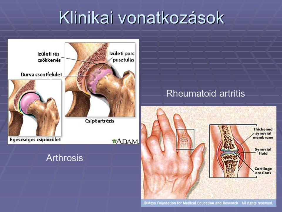 Klinikai vonatkozások Arthrosis Rheumatoid artritis
