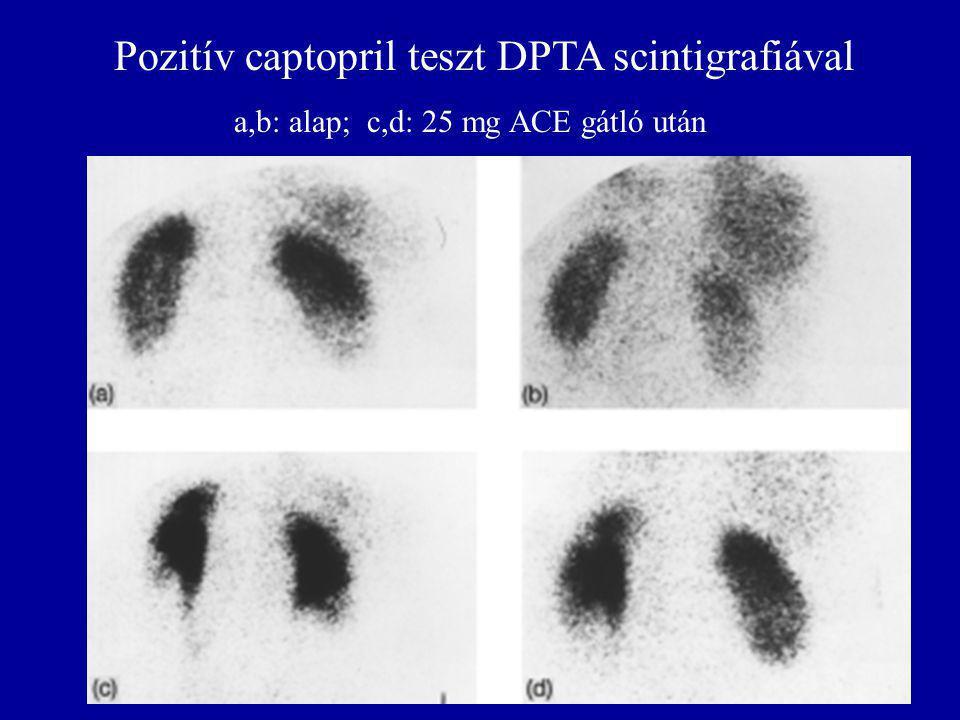 Pozitív captopril teszt DPTA scintigrafiával a,b: alap; c,d: 25 mg ACE gátló után