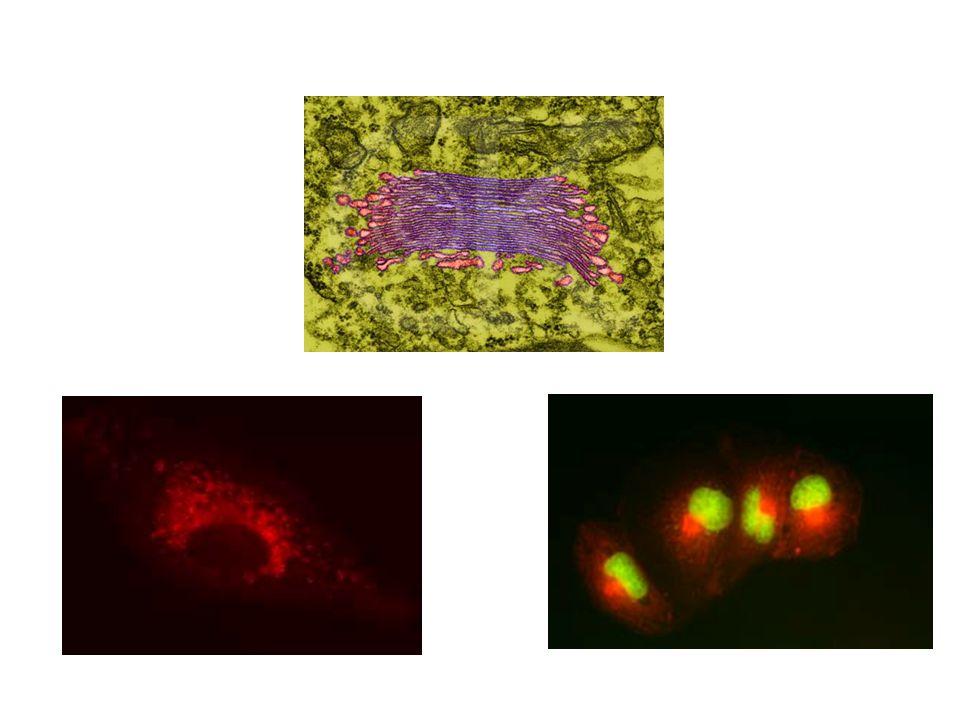 Hibák a válogató mechanizmusban lizoszómális enzimek nem kerülnek bele az endoszómába DE az enzimek belekerülnek a constitutív szekréciós útvonalba és kiürülnek I (=inclusion) = zárványsejt betegség: - az enzimeken nincs M-6-P szignál - a lizoszómális enzimek kiszabadulnak a sejtből - a sejten belüli emésztés károsodik - a nem-emésztett anyagok ZÁRVÁNY-TESTEKET alkotnak