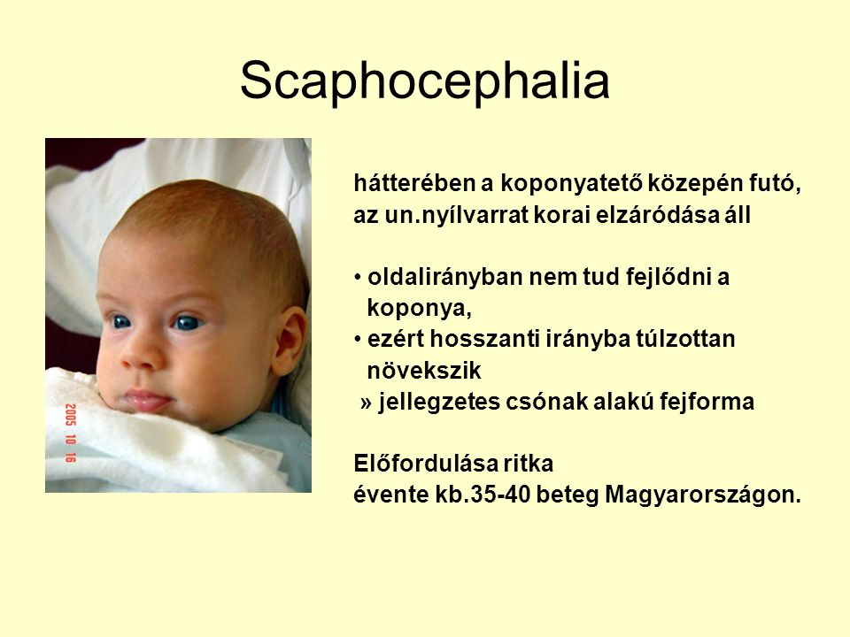 Scaphocephalia hátterében a koponyatető közepén futó, az un.nyílvarrat korai elzáródása áll oldalirányban nem tud fejlődni a koponya, ezért hosszanti