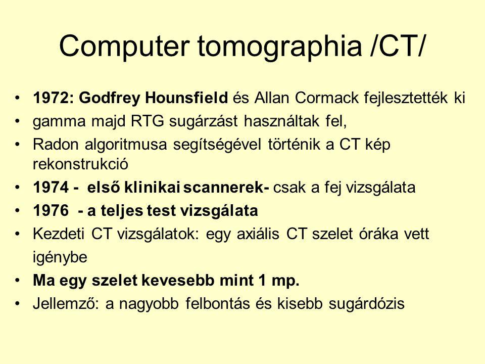 Computer tomographia /CT/ 1972: Godfrey Hounsfield és Allan Cormack fejlesztették ki gamma majd RTG sugárzást használtak fel, Radon algoritmusa segíts