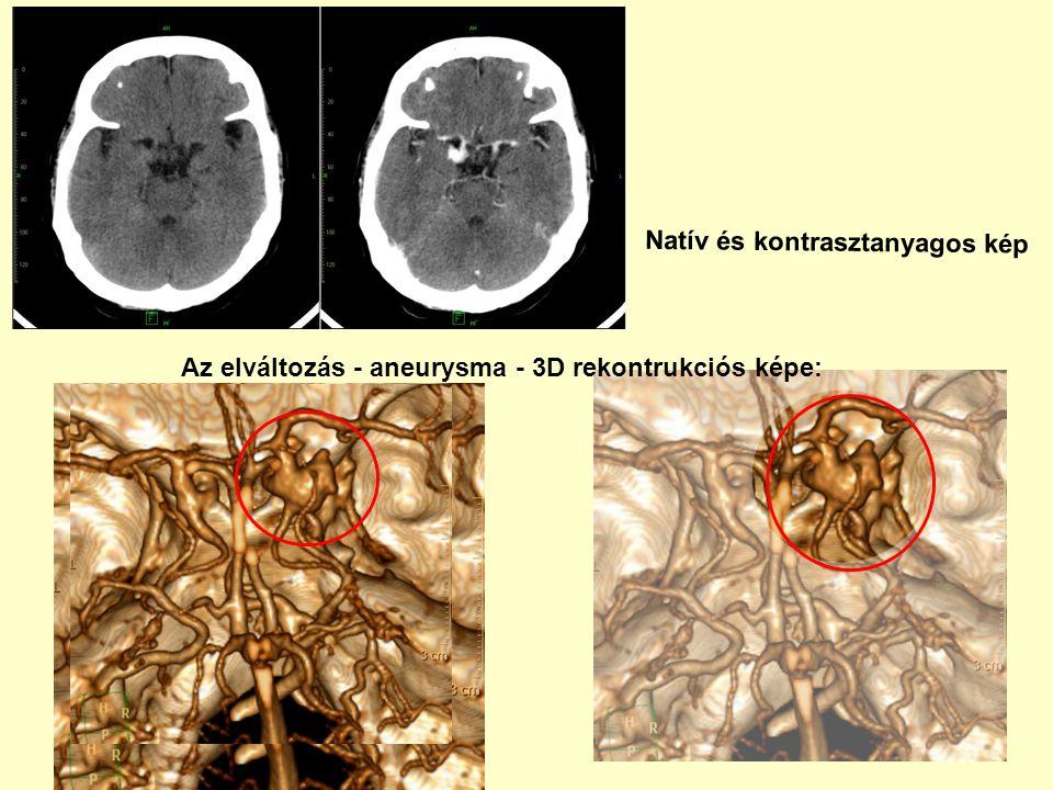 Natív és kontrasztanyagos kép Az elváltozás - aneurysma - 3D rekontrukciós képe: