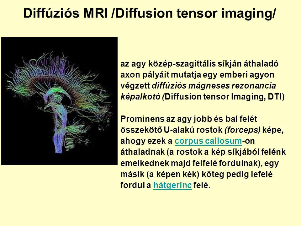 Diffúziós MRI /Diffusion tensor imaging/ az agy közép-szagittális síkján áthaladó axon pályáit mutatja egy emberi agyon végzett diffúziós mágneses rez