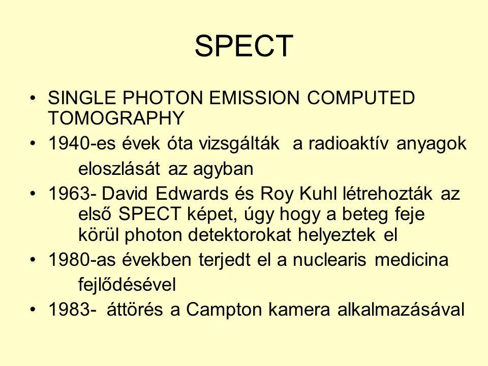 SPECT SINGLE PHOTON EMISSION COMPUTED TOMOGRAPHY 1940-es évek óta vizsgálták a radioaktív anyagok eloszlását az agyban 1963- David Edwards és Roy Kuhl