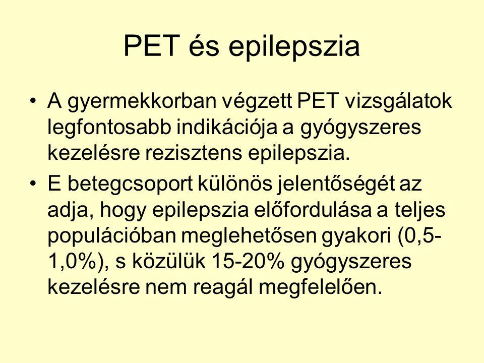 PET és epilepszia A gyermekkorban végzett PET vizsgálatok legfontosabb indikációja a gyógyszeres kezelésre rezisztens epilepszia. E betegcsoport külön