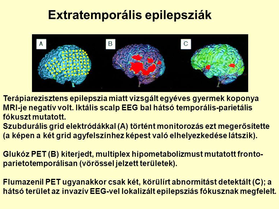 Terápiarezisztens epilepszia miatt vizsgált egyéves gyermek koponya MRI-je negatív volt. Iktális scalp EEG bal hátsó temporális-parietális fókuszt mut