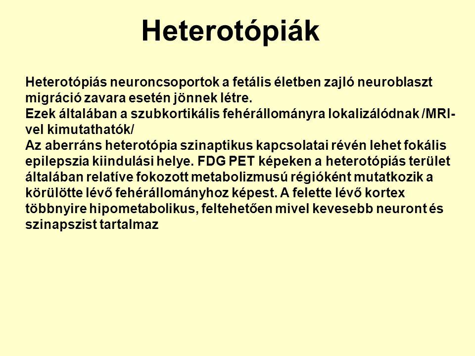 Heterotópiák Heterotópiás neuroncsoportok a fetális életben zajló neuroblaszt migráció zavara esetén jönnek létre. Ezek általában a szubkortikális feh