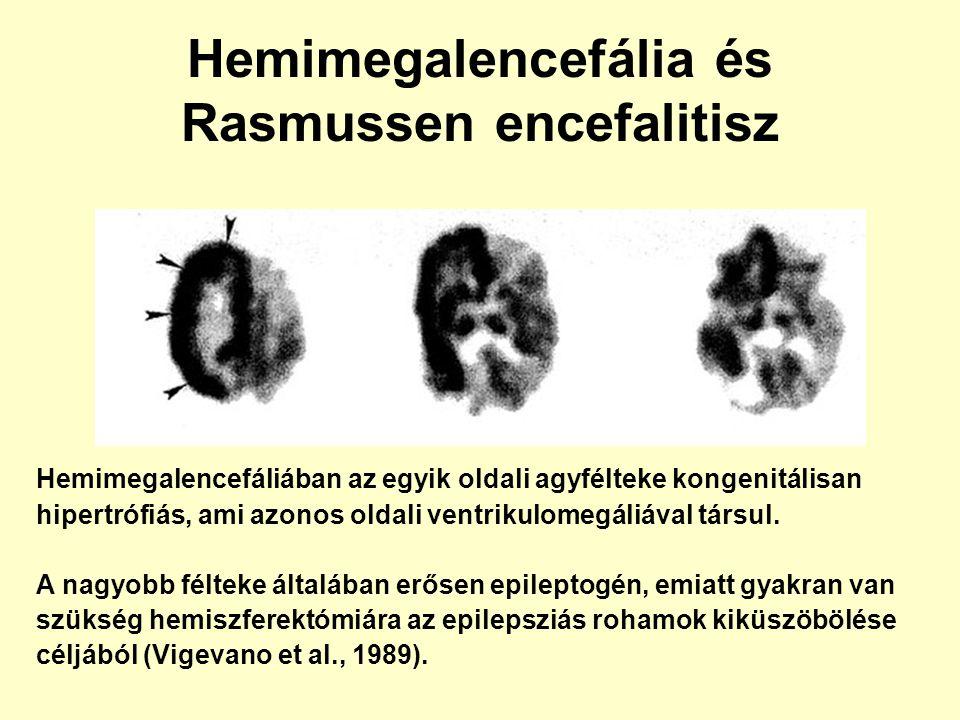 Hemimegalencefália és Rasmussen encefalitisz Hemimegalencefáliában az egyik oldali agyfélteke kongenitálisan hipertrófiás, ami azonos oldali ventrikul