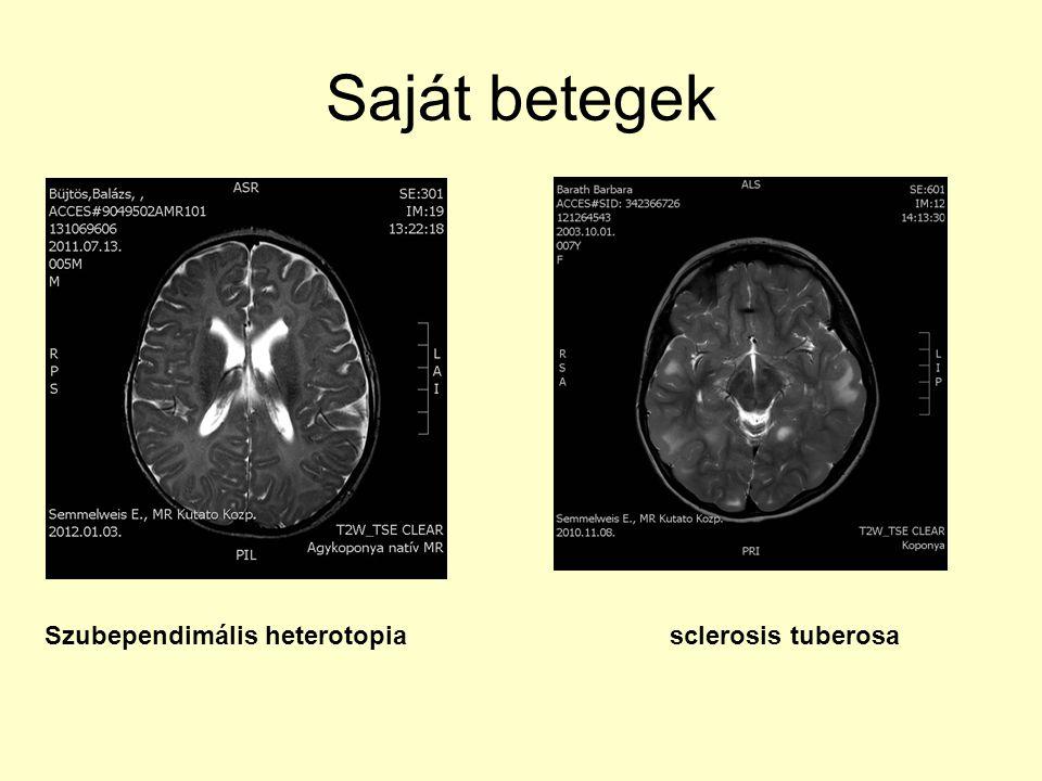 Saját betegek Szubependimális heterotopia sclerosis tuberosa