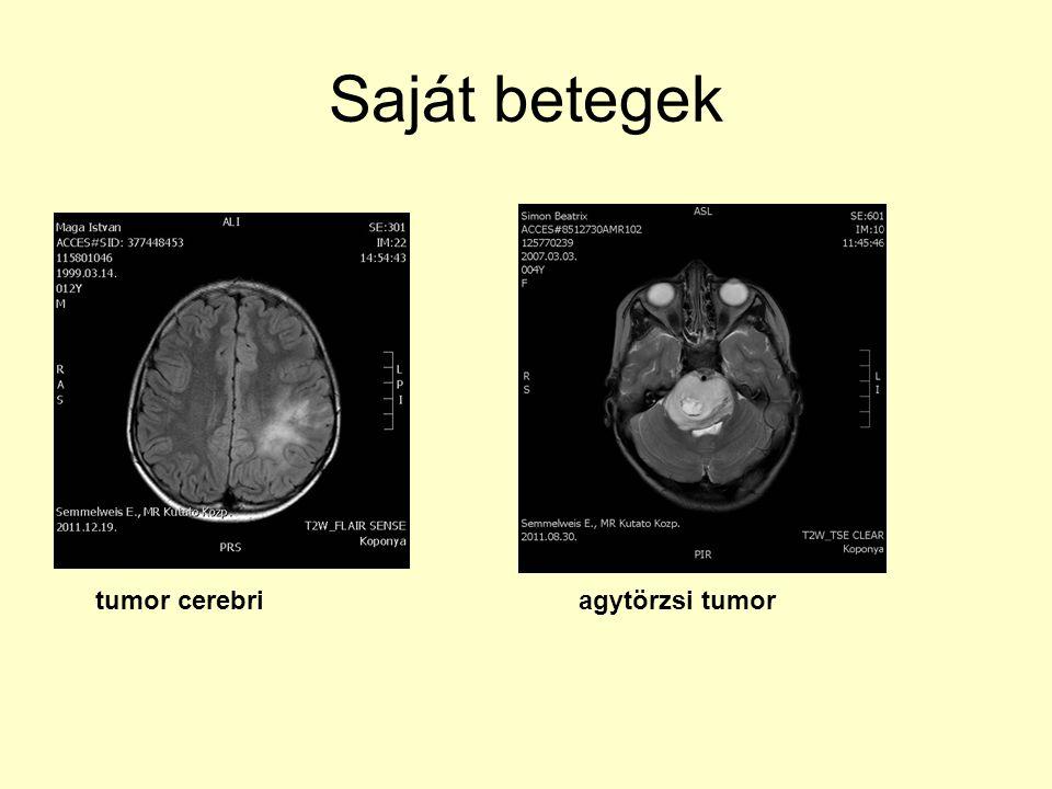 Saját betegek tumor cerebri agytörzsi tumor
