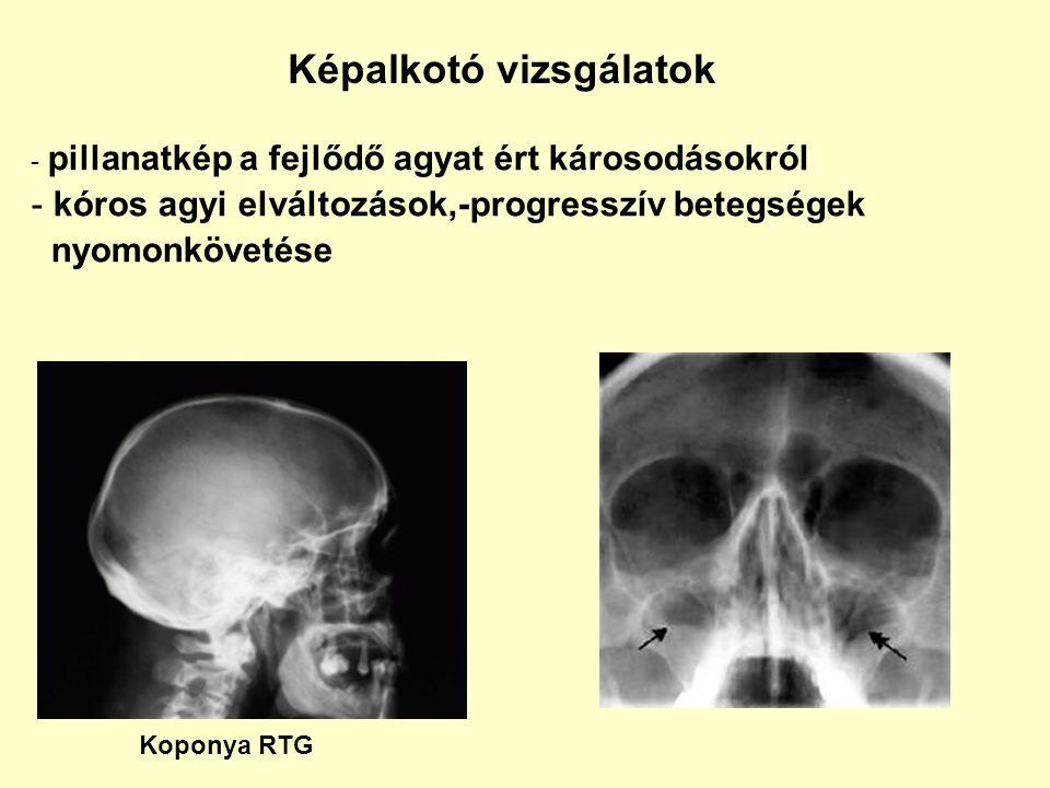 Képalkotó vizsgálatok - pillanatkép a fejlődő agyat ért károsodásokról - kóros agyi elváltozások,-progresszív betegségek nyomonkövetése Koponya RTG
