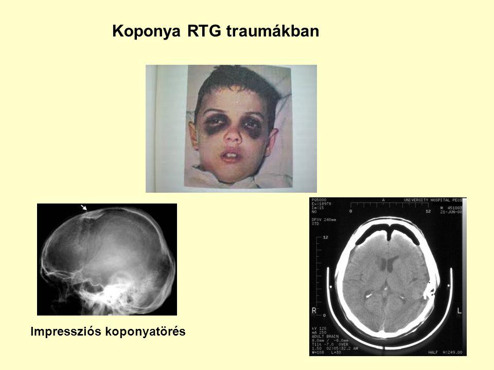 Impressziós koponyatörés Koponya RTG traumákban