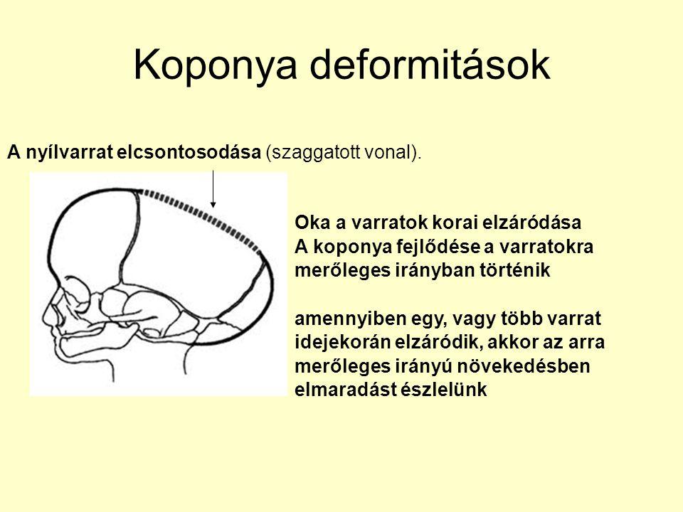 Koponya deformitások A nyílvarrat elcsontosodása (szaggatott vonal). Oka a varratok korai elzáródása A koponya fejlődése a varratokra merőleges irányb