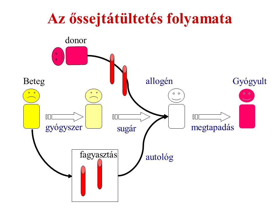 gyógyszer donor BetegGyógyult Az őssejtátültetés folyamata allogén autológ fagyasztás sugár megtapadás