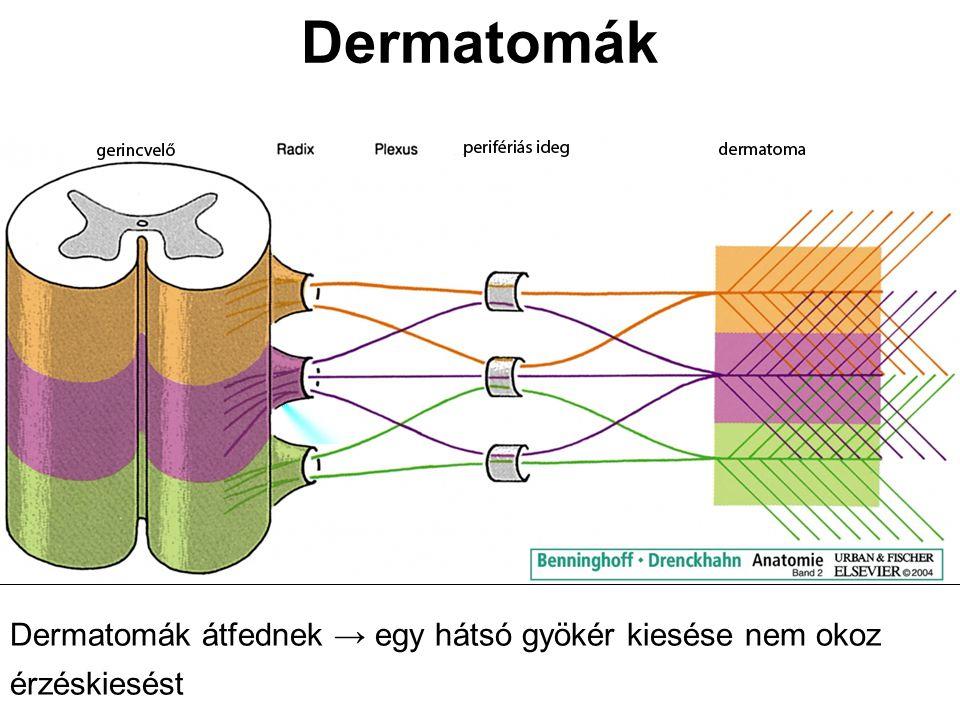 Dermatomák Dermatomák átfednek → egy hátsó gyökér kiesése nem okoz érzéskiesést
