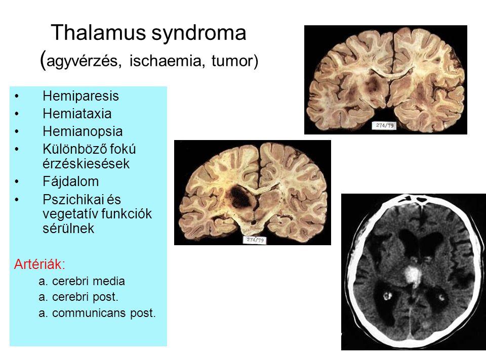 Thalamus syndroma ( agyvérzés, ischaemia, tumor) Hemiparesis Hemiataxia Hemianopsia Különböző fokú érzéskiesések Fájdalom Pszichikai és vegetatív funk