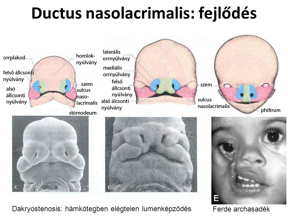 Ductus nasolacrimalis: fejlődés Dakryostenosis: hámkötegben elégtelen lumenképződés Ferde archasadék