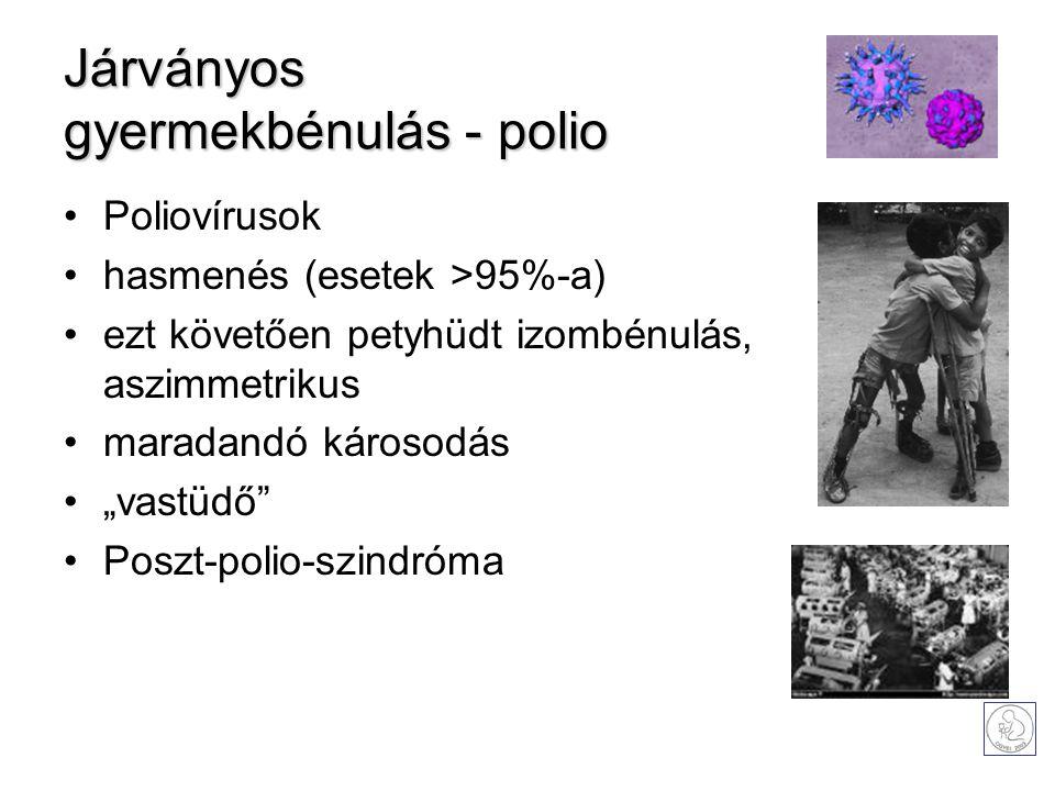 """Járványos gyermekbénulás - polio Poliovírusok hasmenés (esetek >95%-a) eztkövetően petyhüdt izombénulás, aszimmetrikus maradandó károsodás """"vastüdő"""" P"""