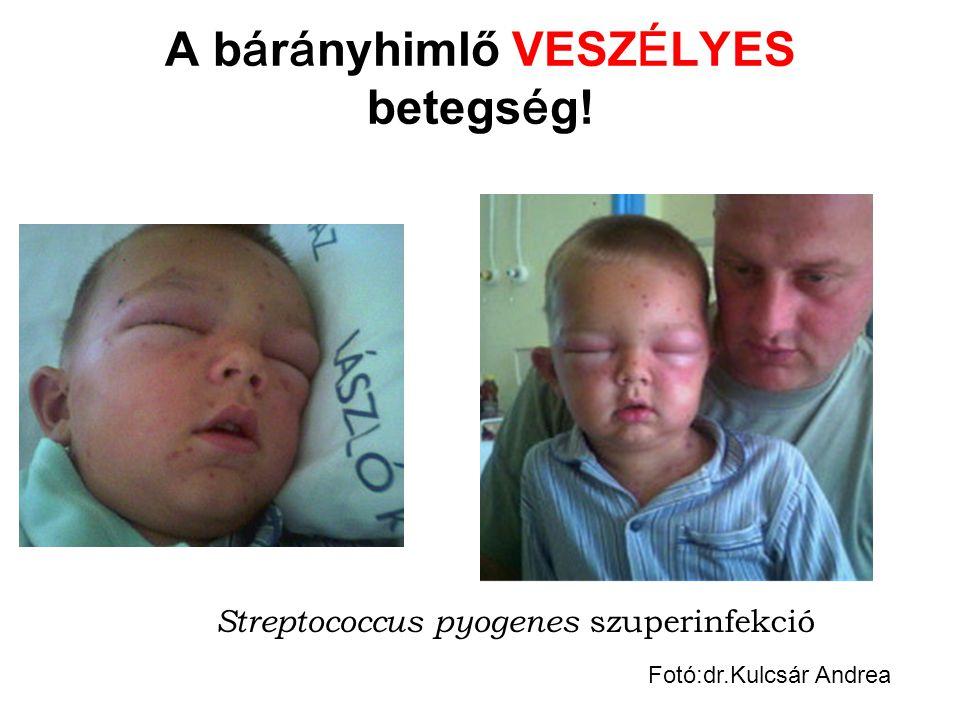 A b á r á nyhimlő VESZ É LYES betegs é g! Streptococcus pyogenes szuperinfekció Fotó:dr.Kulcsár Andrea