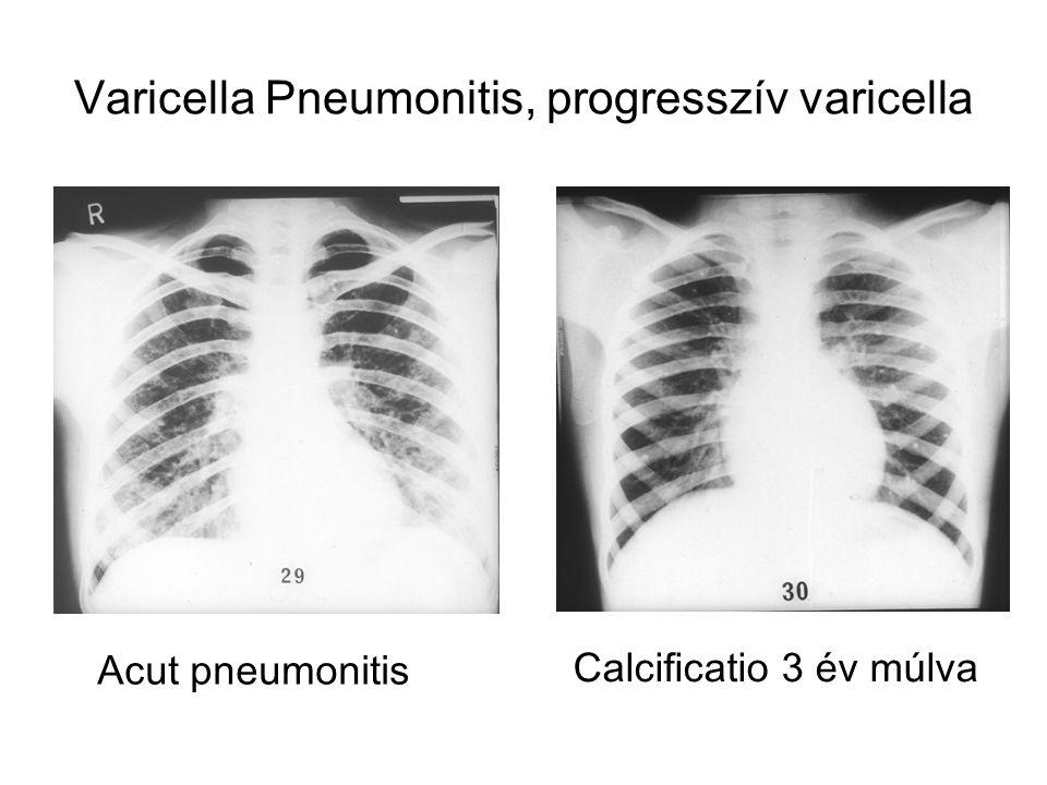 Varicella Pneumonitis, progresszív varicella Acut pneumonitis Calcificatio 3 év múlva