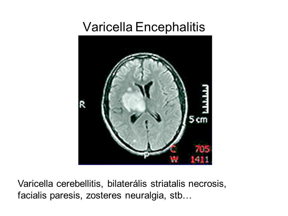 Varicella Encephalitis Varicella cerebellitis, bilaterális striatalis necrosis, facialis paresis, zosteres neuralgia, stb…