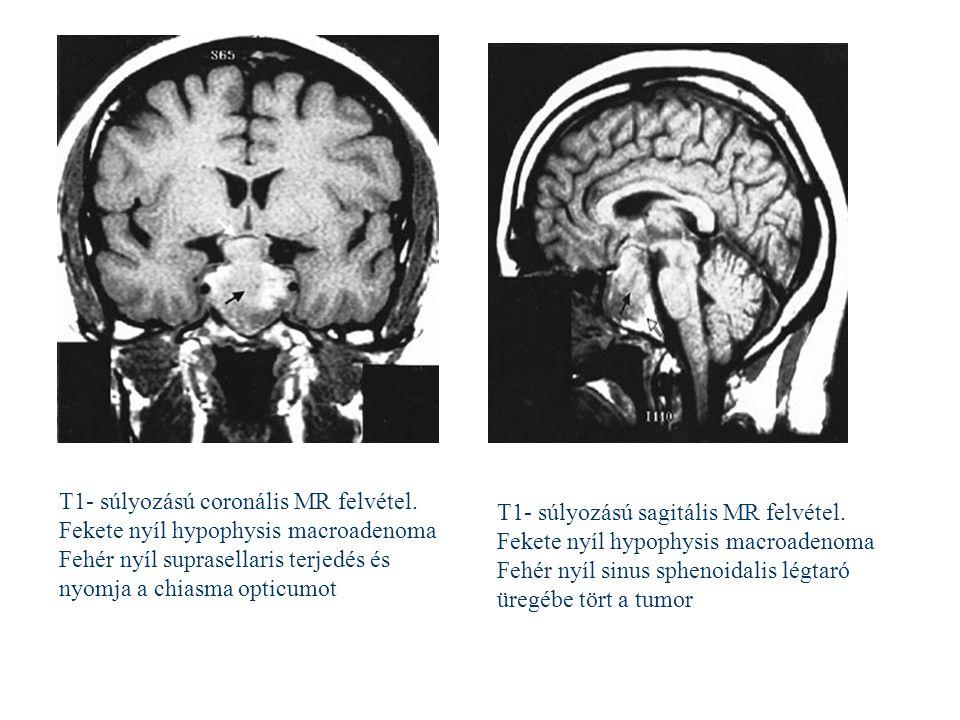 cc T1- súlyozású sagitális MR felvétel. Fekete nyíl hypophysis macroadenoma Fehér nyíl sinus sphenoidalis légtaró üregébe tört a tumor T1- súlyozású c