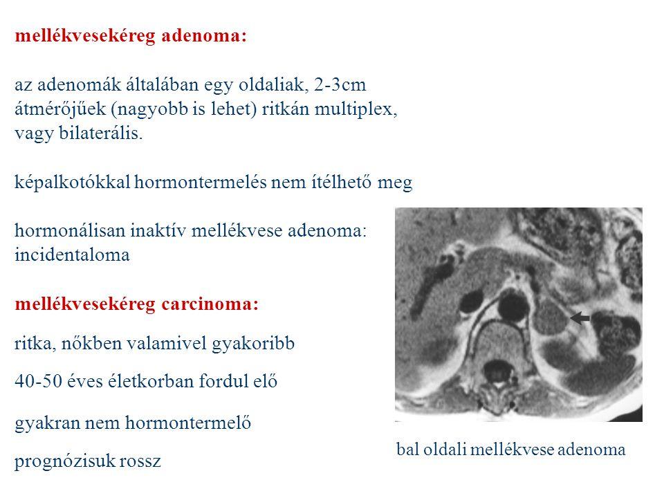 mellékvesekéreg adenoma: az adenomák általában egy oldaliak, 2-3cm átmérőjűek (nagyobb is lehet) ritkán multiplex, vagy bilaterális. képalkotókkal hor