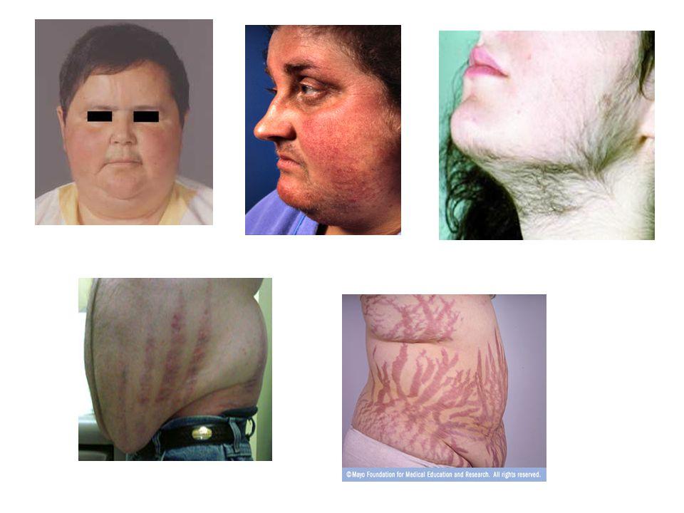 hypokalaemia, oedema képződés (mineralocort.hatás) növelik az ulcus előfordulásának gyakoriságát.