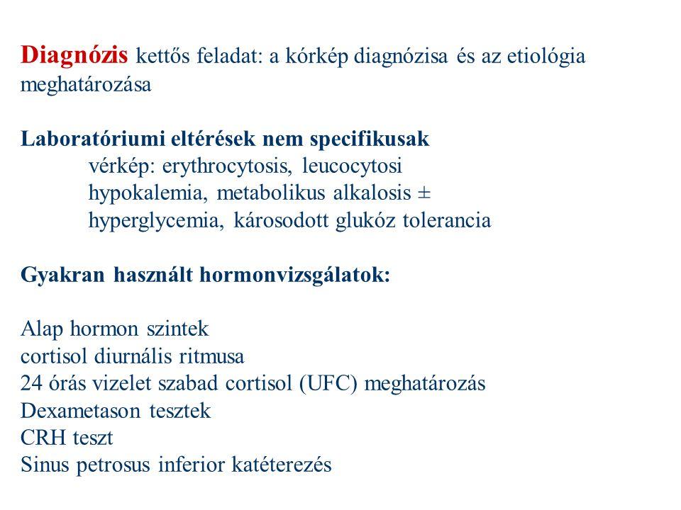 Diagnózis kettős feladat: a kórkép diagnózisa és az etiológia meghatározása Laboratóriumi eltérések nem specifikusak vérkép: erythrocytosis, leucocyto
