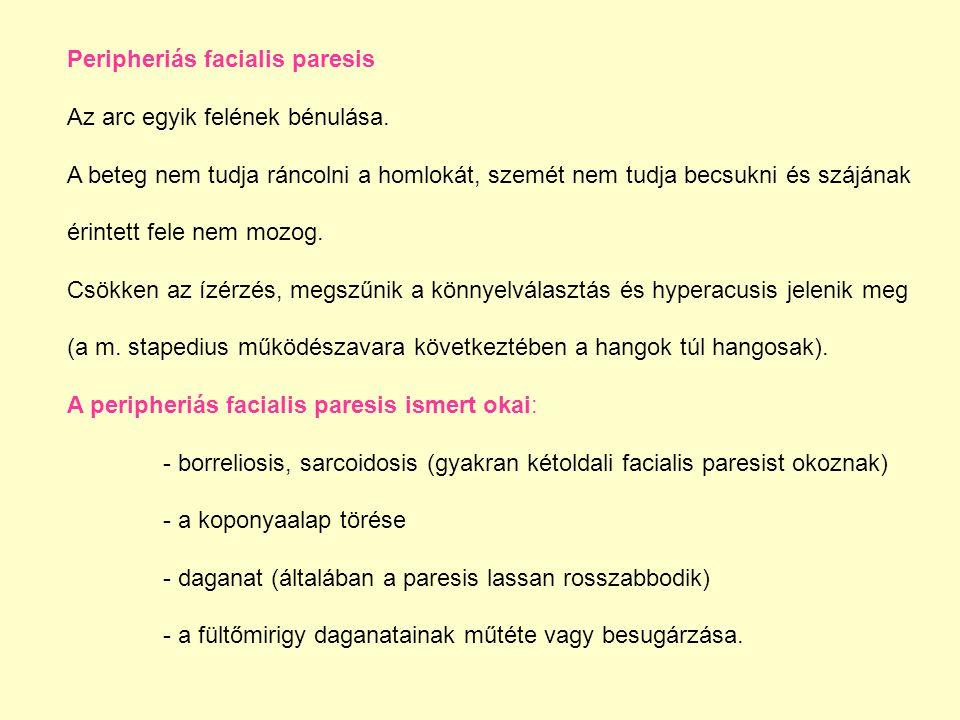 Peripheriás facialis paresis Az arc egyik felének bénulása. A beteg nem tudja ráncolni a homlokát, szemét nem tudja becsukni és szájának érintett fele