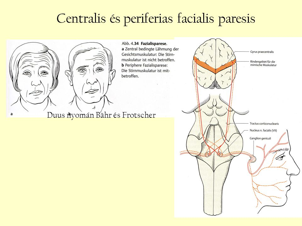 Centralis és periferias facialis paresis Duus nyomán Bähr és Frotscher