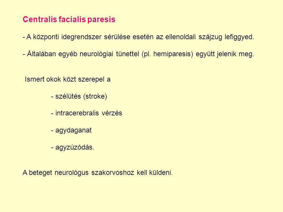 Centralis facialis paresis - A központi idegrendszer sérülése esetén az ellenoldali szájzug lefiggyed. - Általában egyéb neurológiai tünettel (pl. hem